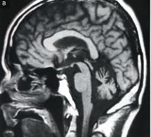 小脳萎縮のMRI像